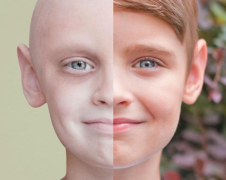 السرطان مرض غير مخيف - معلومات وحقائق عن الخلايا السرطانية