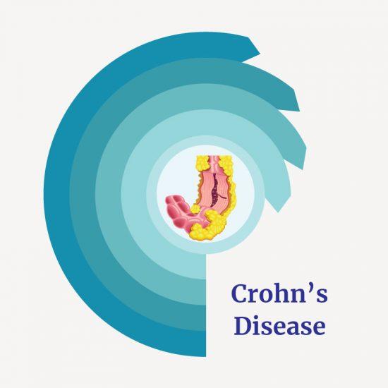 Treatment for Crohn's disease