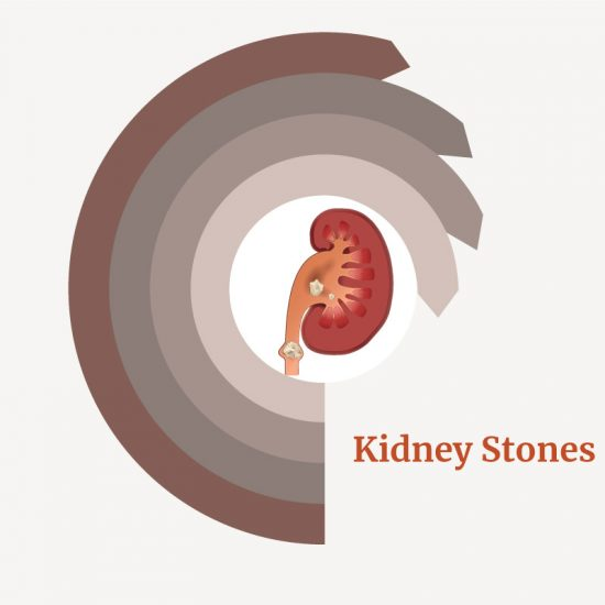 treatment for Kidney Stones