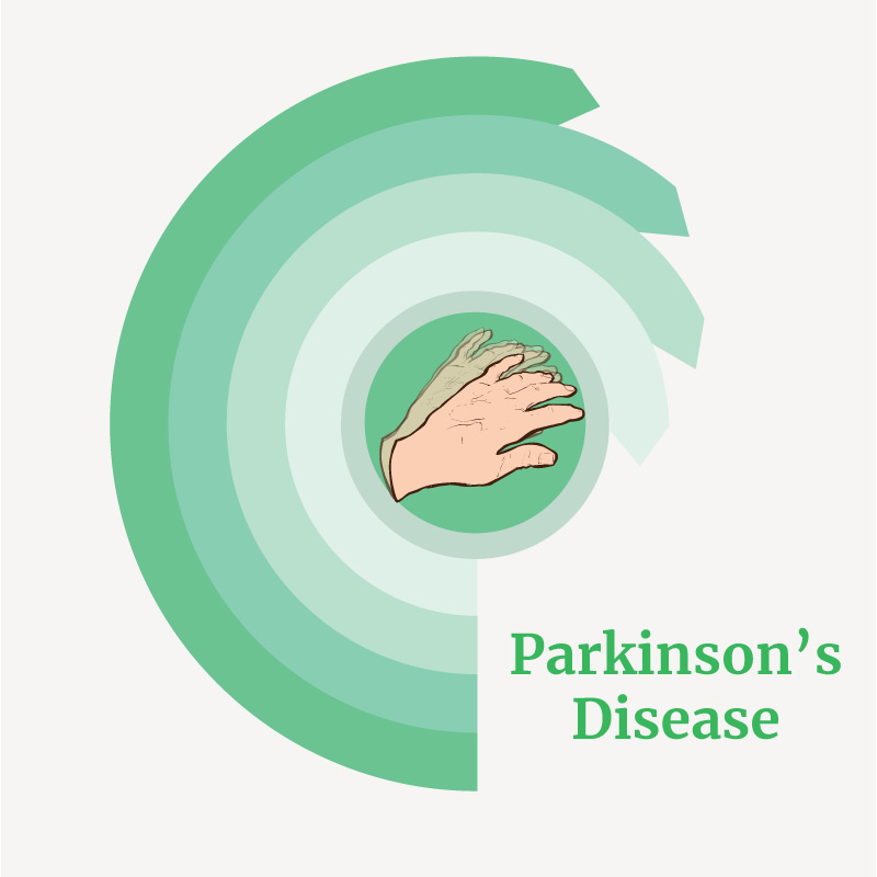 treatment for parkinson's disease