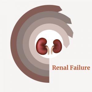 Treatment for Kidney Failure - Renal Failure