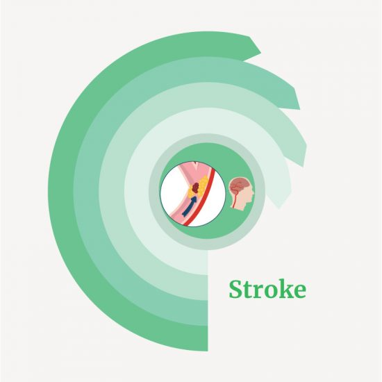 treatment for Stroke