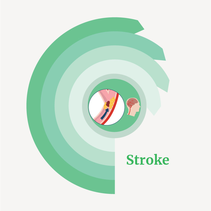 treatment for Stroke