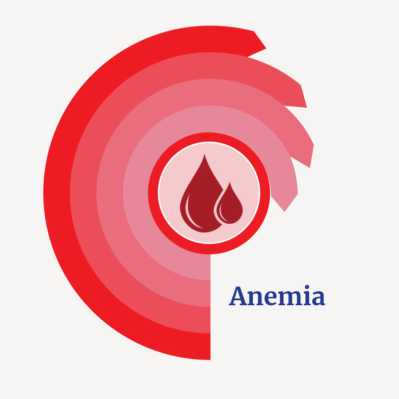 Treatment for Anemia with Medicinal Herbs