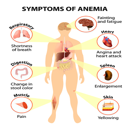 Main sign and symptoms that may appear in anemia