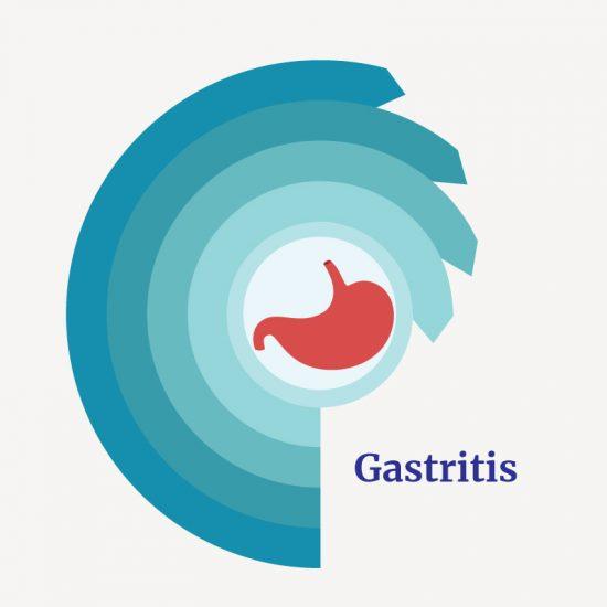 Treatment for gastritis