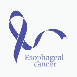 Treatment for Throat and Esophageal Cancer