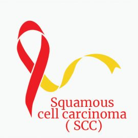 Treatment for SCC - Squamous Cell Carcinoma