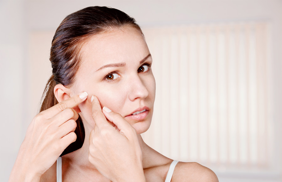 Causes For Acne Vulgaris And Possible Symptoms Hekma Center