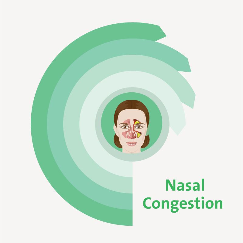 treatment for Nasal Congestion