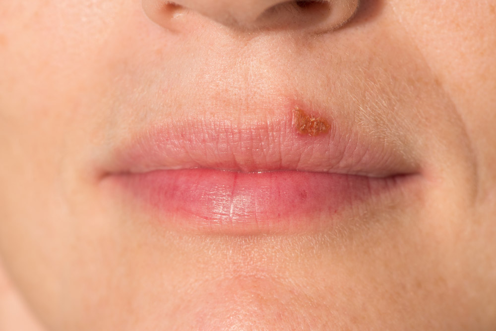 Can Oral Herpes Transform into Genital Herpes?